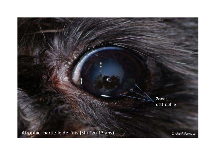 Zones                                                d'atrophieAtrophie partielle de l'iris (Shi-Tzu 13 ans)          Clic...