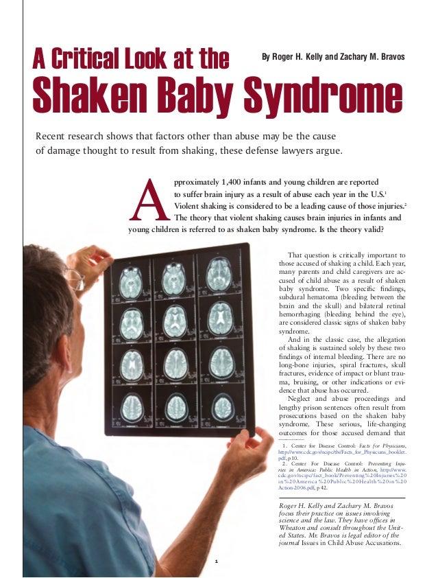 Attorney zachary bravos legal overview on shaken baby