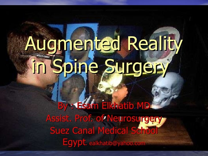 Augmented Reality in Spine Surgery   By : Esam Elkhatib MD Assist. Prof. of Neurosurgery Suez Canal Medical School Egypt ....