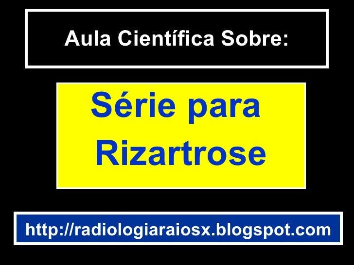 Aula Científica Sobre: Série para  Rizartrose http://radiologiaraiosx.blogspot.com