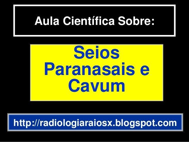 Aula Científica Sobre:SeiosParanasais eCavumhttp://radiologiaraiosx.blogspot.com