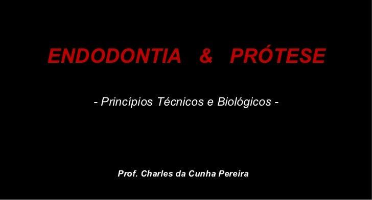 ENDODONTIA  &  PRÓTESE - Princípios Técnicos e Biológicos - Prof. Charles da Cunha Pereira