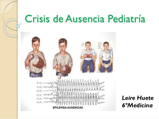 Crisis de Ausencia Pediatría Leire Huete 6ºMedicina