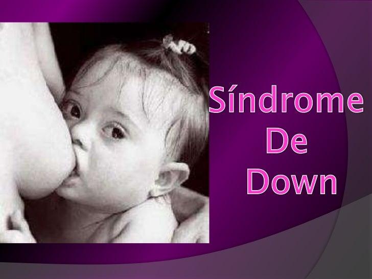 Autismo y sindrome de down