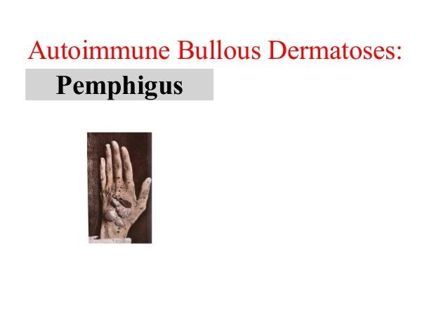 Autoimmune bullous dermatoses