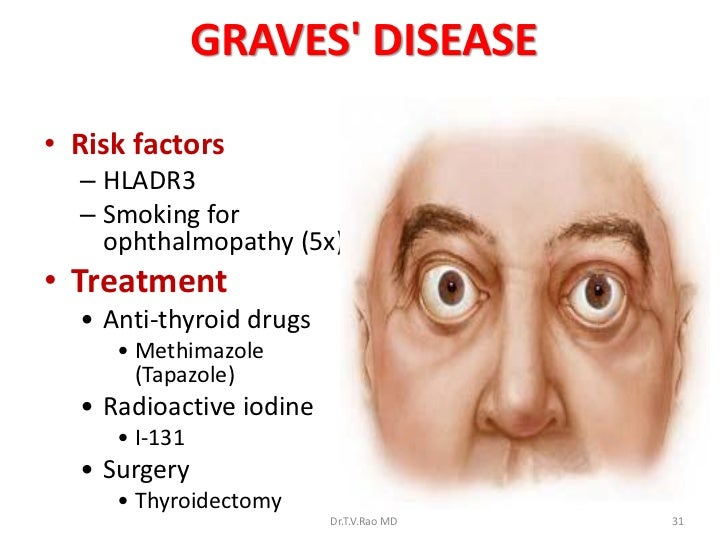 graves diease Graves' disease is an autoimmune disease that leads to an overactive thyroid gland find out the common graves' disease symptoms, causes, and.