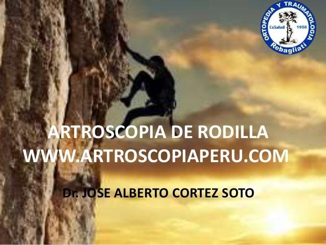 ARTROSCOPIA DE RODILLA WWW.ARTROSCOPIAPERU.COM Dr. JOSE ALBERTO CORTEZ SOTO