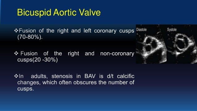 Problem Aortic Valve Stenosis