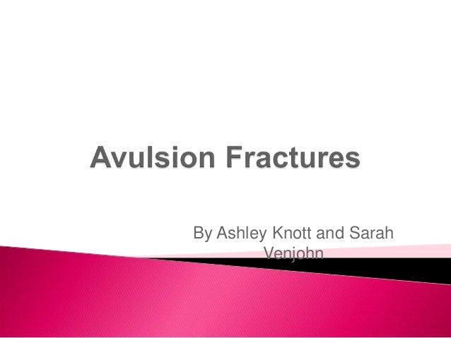 By Ashley Knott and Sarah Venjohn