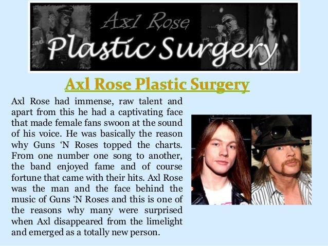 Axl Rose had immense, raw talent and apart from this he had a captivating face that made female fans swoon at the sound of...