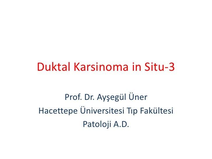 Duktal Karsinoma in Situ-3      Prof. Dr. Ayşegül ÜnerHacettepe Üniversitesi Tıp Fakültesi           Patoloji A.D.