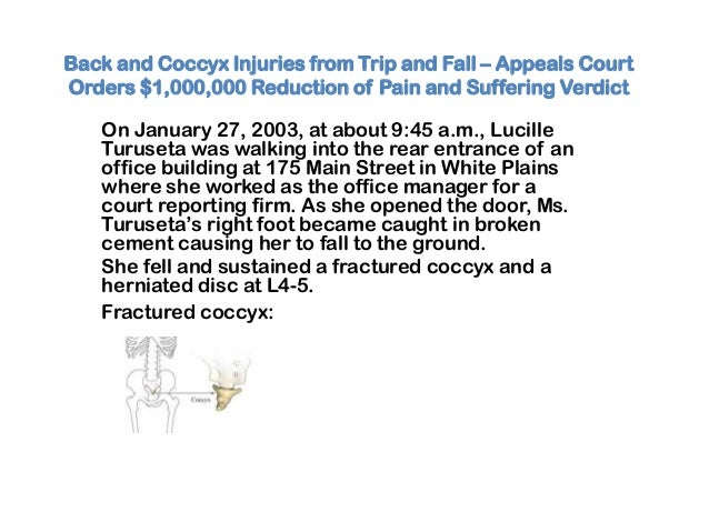 Back and Coccyx Injuries from Trip and Fall – Appeals CourtOrders $1,000,000 Reduction of Pain and Suffering VerdictOn Jan...
