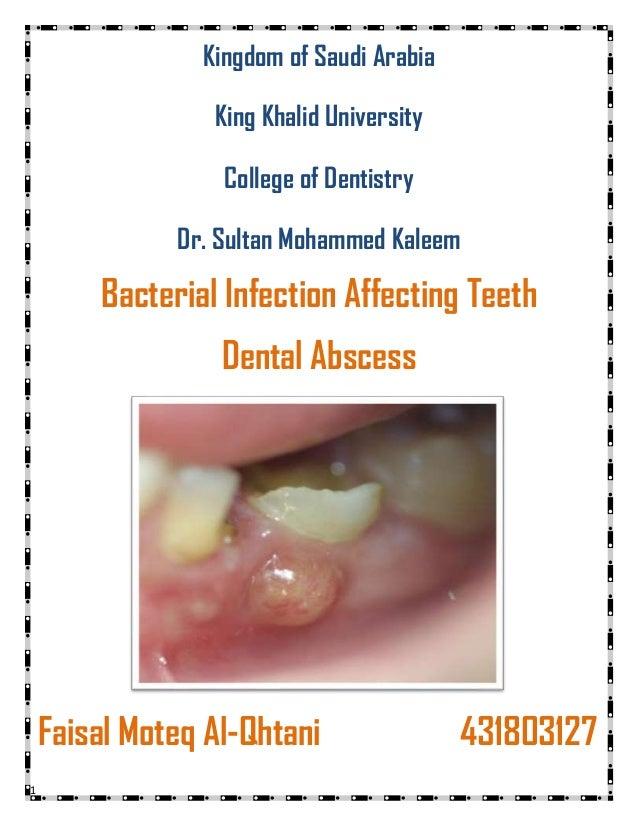 1 Kingdom of Saudi Arabia King Khalid University College of Dentistry Dr. Sultan Mohammed Kaleem Bacterial Infection Affec...