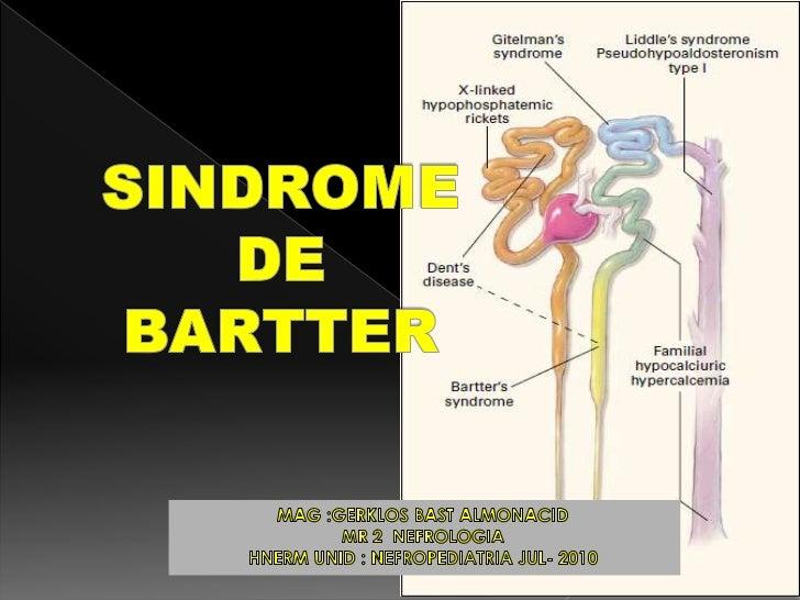  El síndrome de Bartter es un trastorno  tubular caracterizado básicamente por alcalosis metabólica  hipopotasémica, hip...