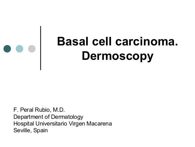 Basal cell carcinoma.                   DermoscopyF. Peral Rubio, M.D.Department of DermatologyHospital Universitario Virg...