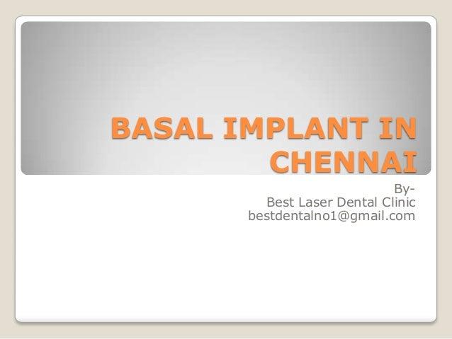 BASAL IMPLANT IN CHENNAI By- Best Laser Dental Clinic bestdentalno1@gmail.com