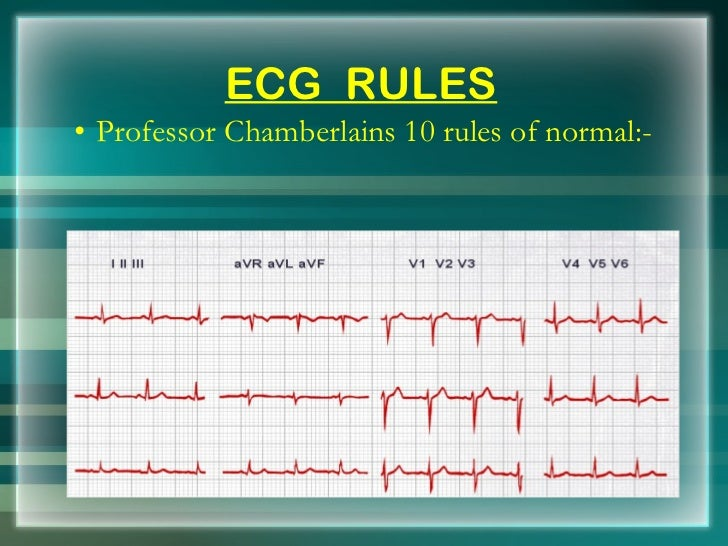 ecg basics Free online 12-lead ecg interpretation course starting with a tutorial on ecg basics and including quizzes, cases and tests.