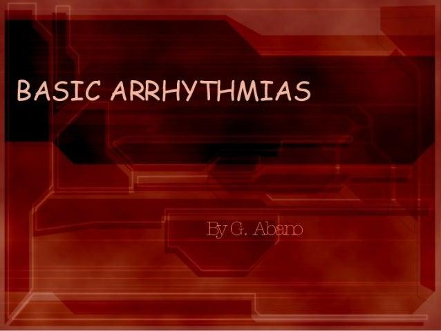 Basic Arrythmias