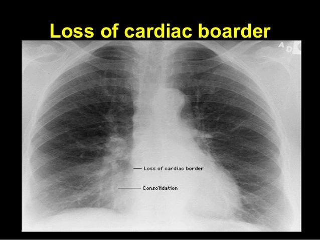 Basic chest x ray interpretation