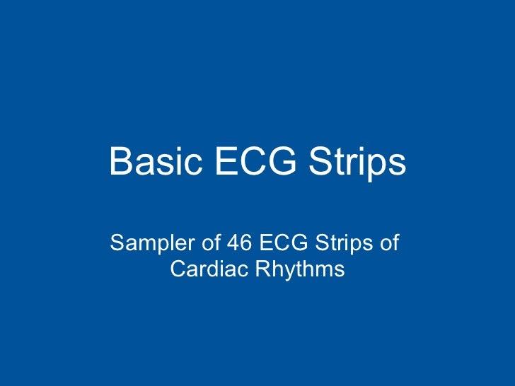 Basic ECG Strips Sampler of 46 ECG Strips of  Cardiac Rhythms