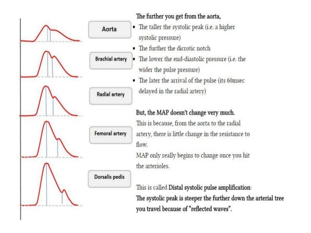 A Line Arterial Monitoring : Basic haemodynamic monitoring
