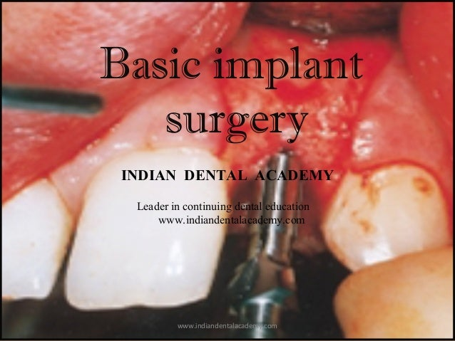 Basic dental implant surgery/ cosmetic dentistry training