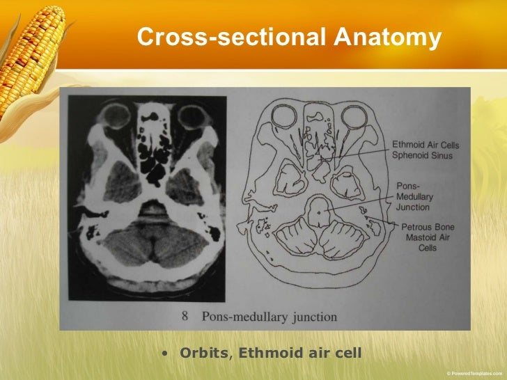 Ct scan cross sectional anatomy