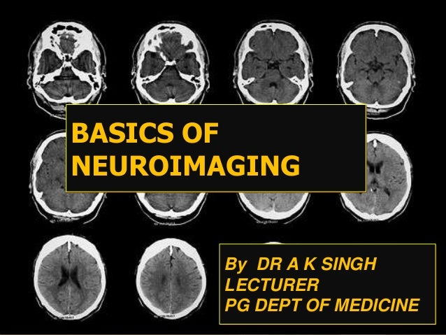 By DR A K SINGH LECTURER PG DEPT OF MEDICINE BASICS OF NEUROIMAGING