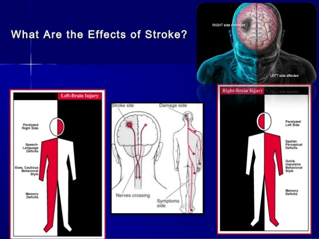 effects of stroke The effects of stroke can include communication problems, tiredness and fatigue, emotional changes and pain learn more about the physical and emotional effects of stroke.