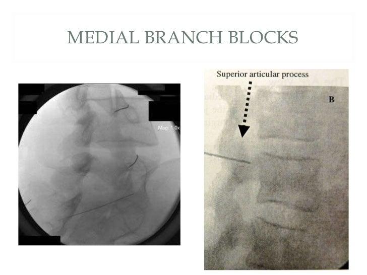 epidural steroid blocks caudal