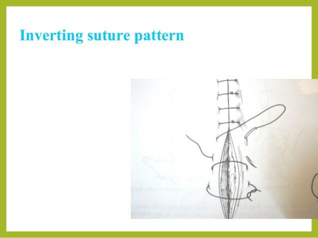 Parker Kerr Suture Patterns - Patterns Kid