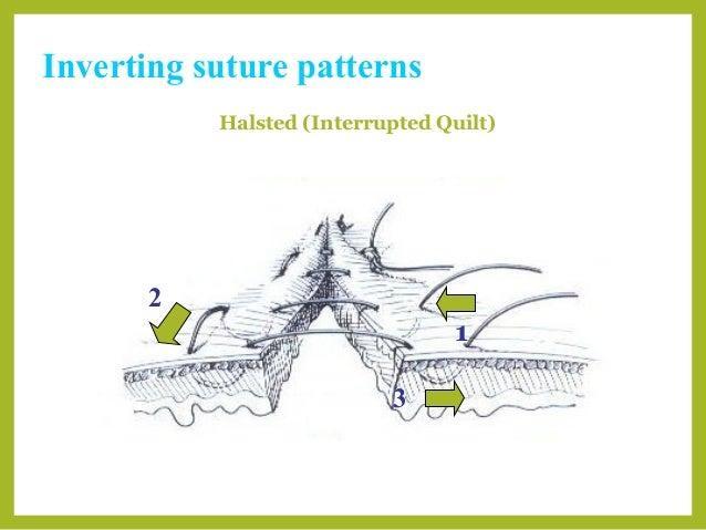 Basic Suture Patterns