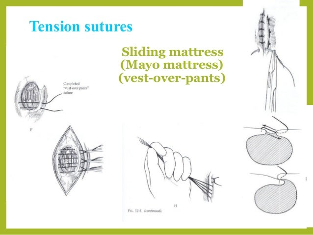 Basic Suture Patterns
