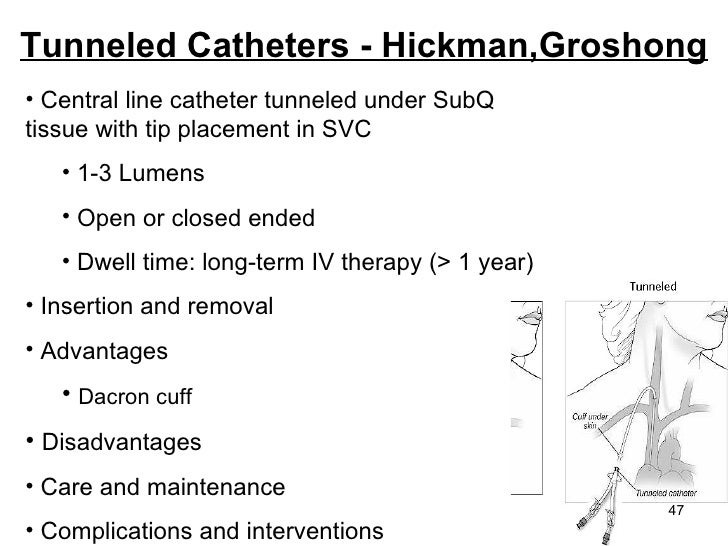tunneled catheters hic...
