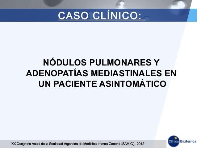 NODULOS PULMONARES Y  ADENOPATIAS MEDIASTINALES