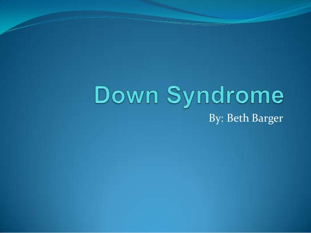 Bbargerdownsyndrome