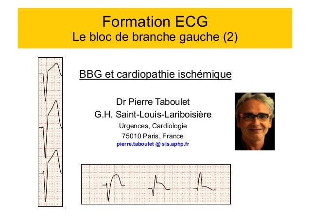 Formation ECG  Le bloc de branche gauche (2)  BBG et cardiopathie ischémique  Dr Pierre Taboulet  G.H. Saint-Louis-Lariboi...