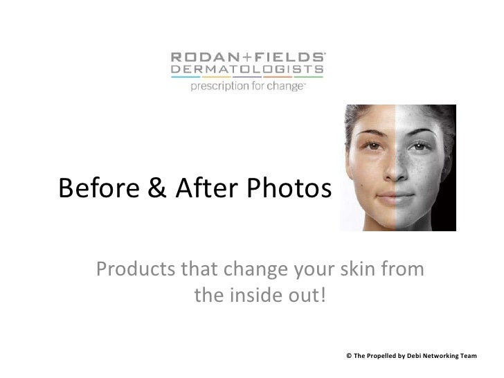 Before & After Photos<br />Products that change your skin from the inside out!<br />© The Propelled by Debi Networking Tea...