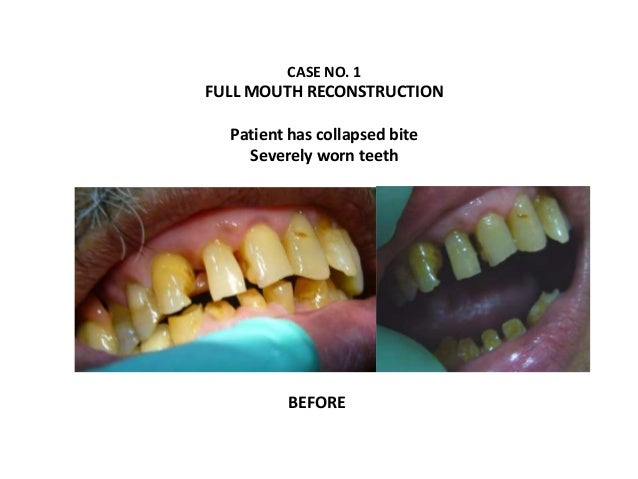 CASE NO. 1 FULL MOUTH RECONSTRUCTION Patient has collapsed bite Severely worn teeth BEFORE