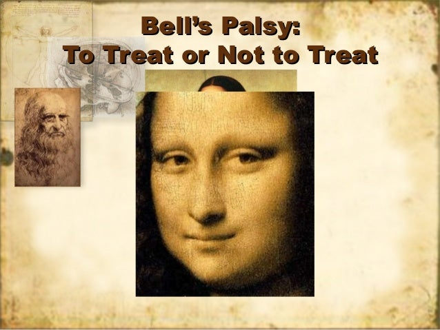 Bells palsy- To Treat or Not to Treat