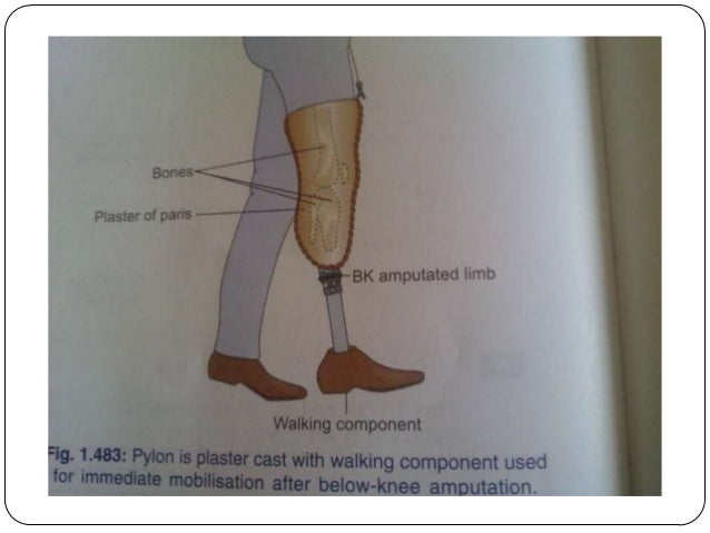 bka prothesis A below-knee amputation (bka) is an amputation often performed for foot and ankle problems the bka often leads to the use of an artificial leg that can allow a.