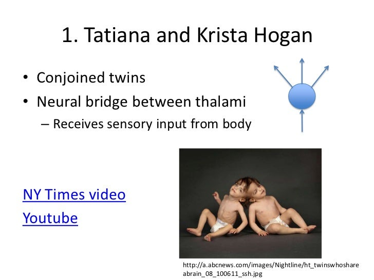 Krista And Tatiana Hogan 2013
