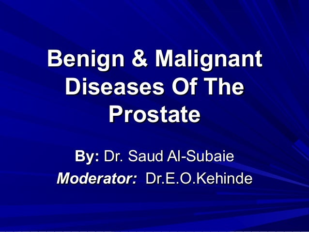 Benign & Malignant Diseases Of The     Prostate  By: Dr. Saud Al-SubaieModerator: Dr.E.O.Kehinde