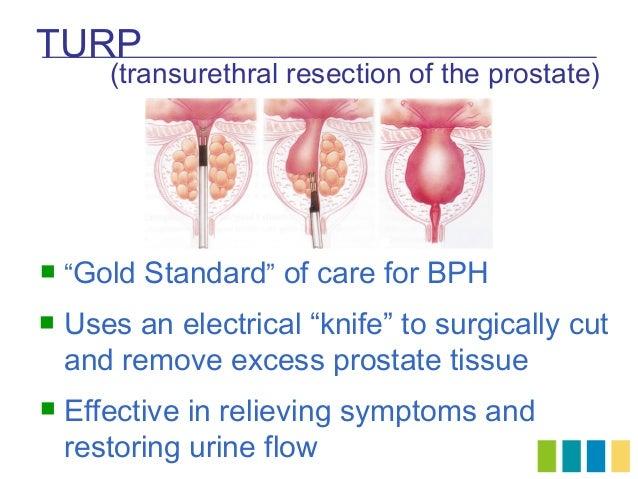 Cialis Urine Flow