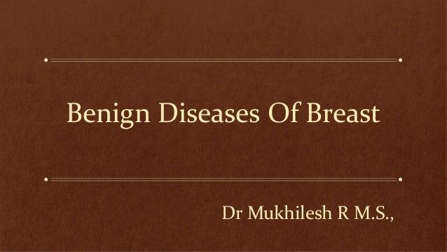 Benign Diseases Of Breast  Dr Mukhilesh R M.S.,