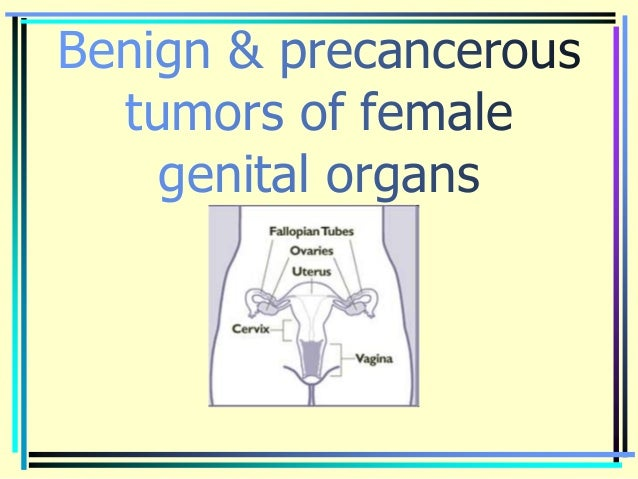 Benign & precancerous tumors of female genital organs