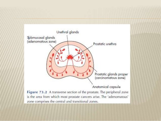 Benign Prostatic Hyperplasia   ppt video online download HESI Case Studies