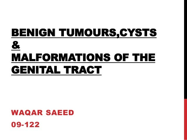 BENIGN TUMOURS,CYSTS & MALFORMATIONS OF THE GENITAL TRACT WAQAR SAEED 09-122