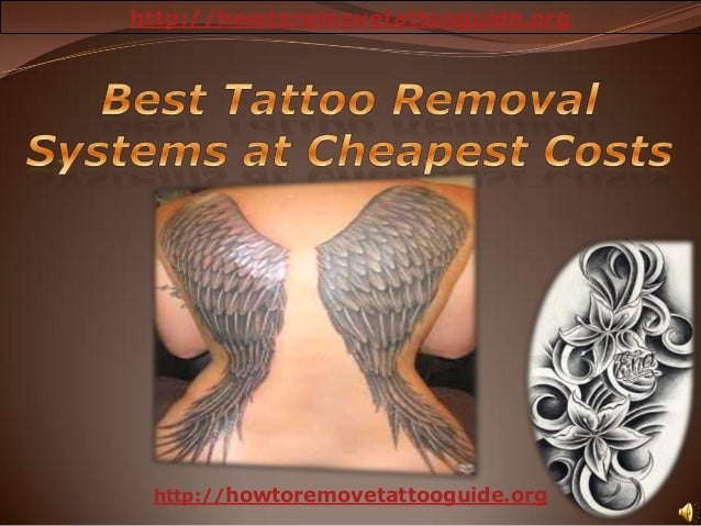 Best tattoo removal systems at cheapest costs