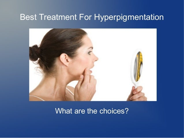 Best Treatment For Hyperpigmentation  What are the choices?